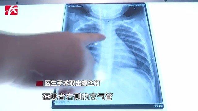 又一起异物卡喉!长沙两岁女童误吞螺丝卡在支气管