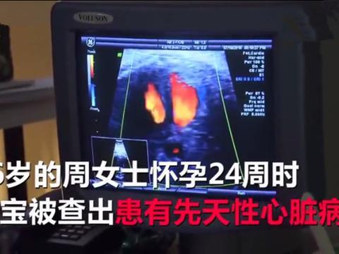 胎儿检出先天性心脏病,在孕妈腹中接受手术,三类疾病B超查不出