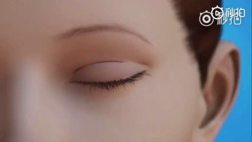 上睑肌无力严重的会影响视力,而且长期利用额肌力量铮眼