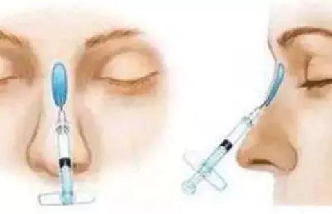 玻尿酸隆鼻到底会不会让鼻梁变宽?