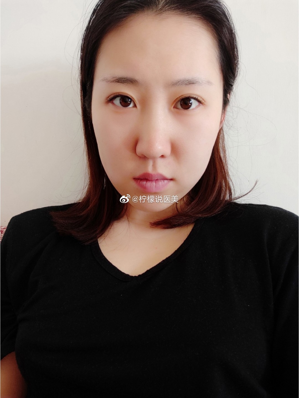 求助:纯正脸素颜想打瘦脸针是否适合?鼻子不好看我知道