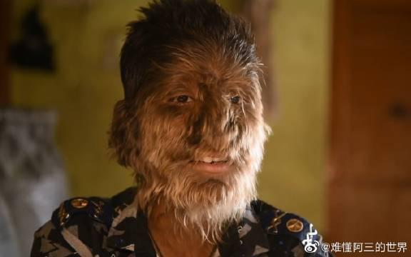 印度男孩原始基因被激活,全身长毛的狼人综合症,医生束手无策!