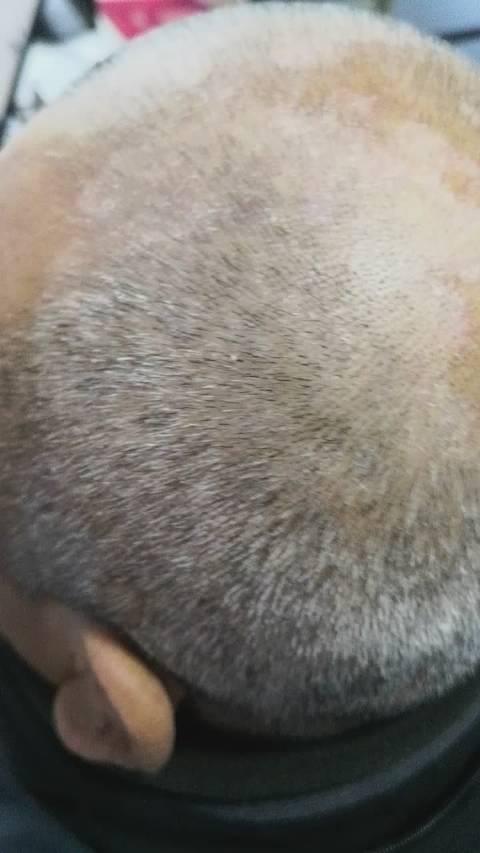 头皮脂溢性皮炎,短头发看的轮廓和皮疹比较清楚啦。我的患者男