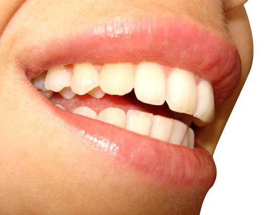 典型病例分析(417)妊娠期的口腔卫生
