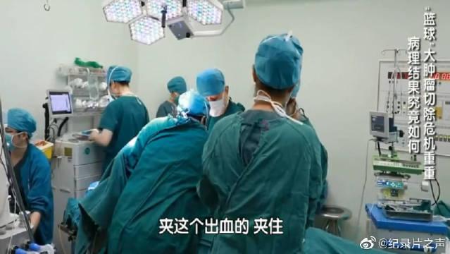 医生给老太太做了手术,切下来10斤的肿瘤,真难想象!