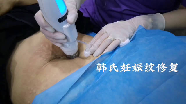 产后妊娠纹不仅会出现断裂,更会伴随严重皮肤松弛