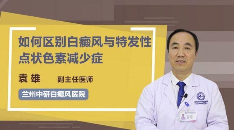 兰州中研医院副主任医师袁雄 如何区别白癜风与点状色素减少症