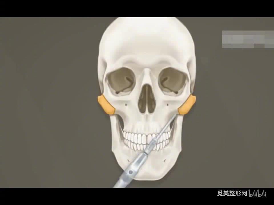 有的人颧骨高,是由太阳穴和面颊凹陷反向衬托的