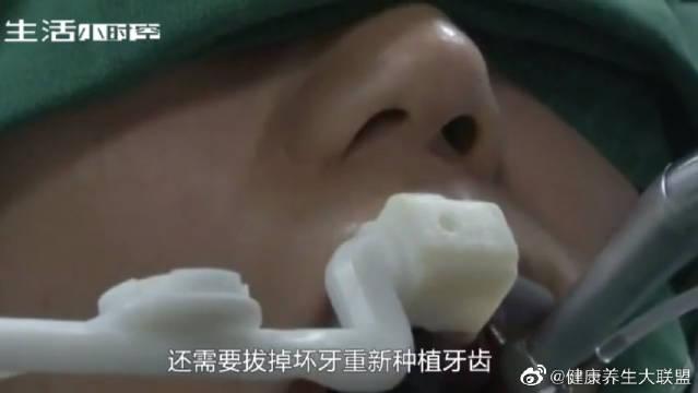 牙医是如何种植牙齿的?把烂牙拔出的那一刻,隔着屏幕都疼!