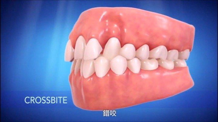 牙齿不齐对身体健康有什么危害
