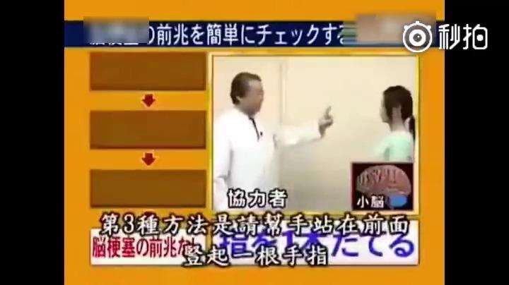 这个必须提早预防啊!岛国专家亲自告诉你:如何自行判断脑梗塞前兆