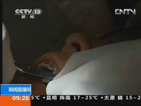 国家普及口腔健康已经是医疗重点;中央电视台多次采访北京大学口腔