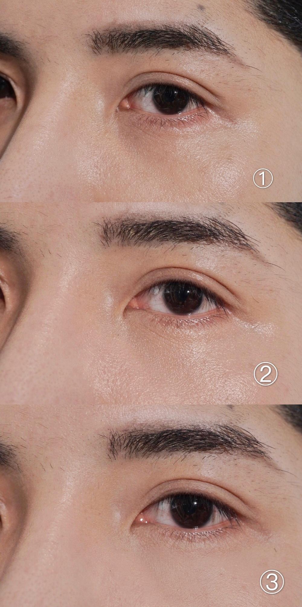 遮盖泪沟型黑眼圈