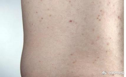 女子凭一颗痘痘抓到老公出轨证据!网友:根本就是福尔摩斯