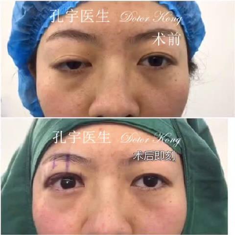 右眼上睑下垂修复术:姑娘右眼先天性上睑下垂,3年前做过手术