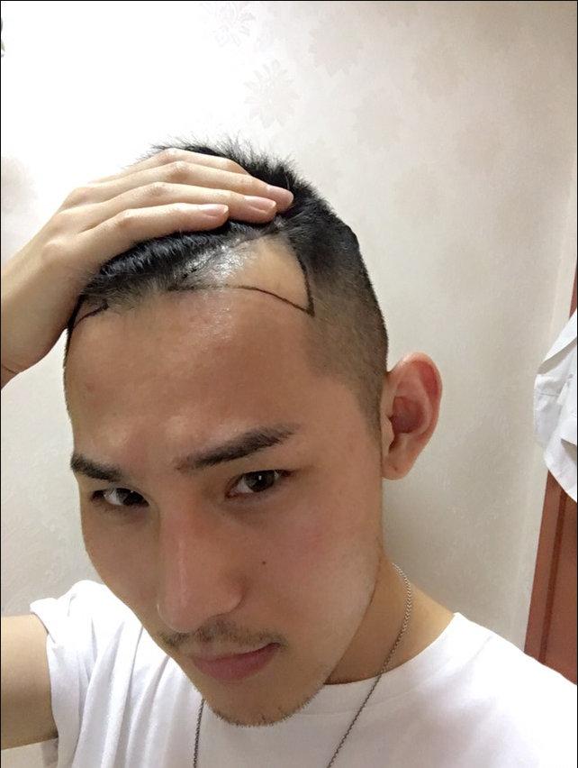 植发前后的区别就不多说了,照片上已经很明显了,@老彭植发说