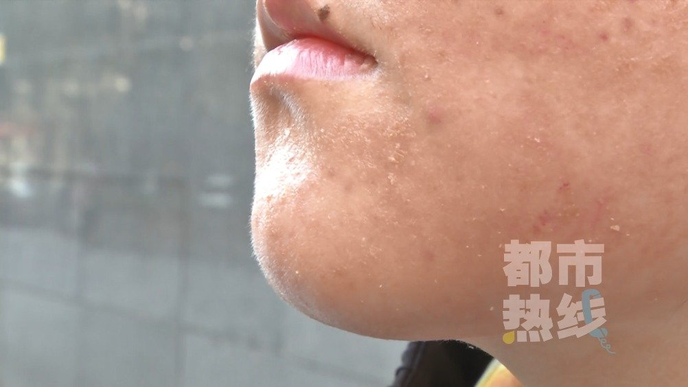 面部护理后 西安一女大学生脸部肿胀患上接触过敏性皮炎