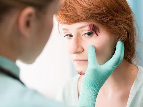 春节期间警惕儿童眼外伤,这些眼外伤防护方法,请家长务必牢记
