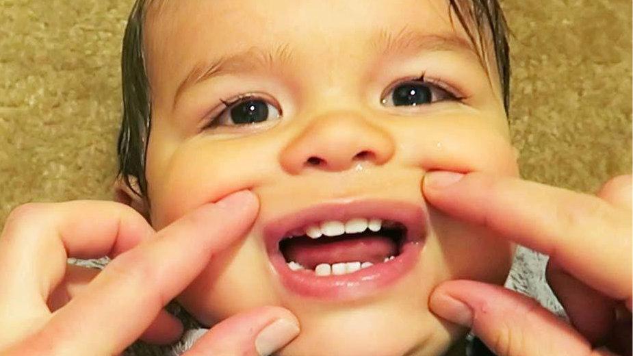 乳牙比脐带血还管用?英国一对夫妇存孩子的乳牙,来预防身体意外