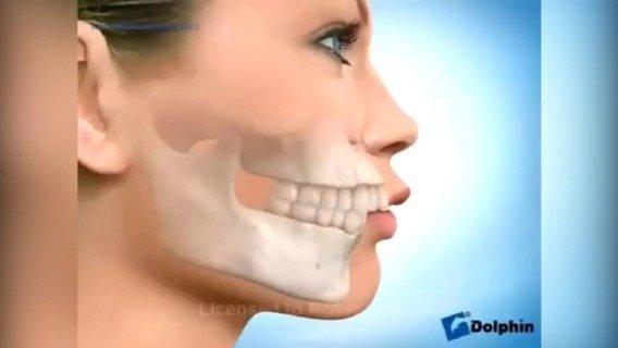 拔牙,内收关闭拔牙间隙,解除拥挤