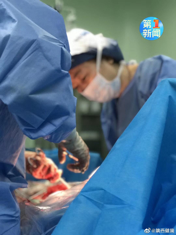 医护人员48天守护 910克早产女婴闯过险关