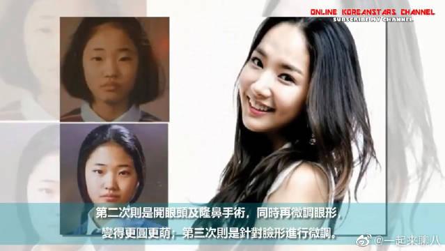 朴敏英整形太成功还成为范本!盘点韩国大方承认整形的7位女星