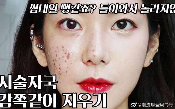 做完手术的痘肌瑕疵皮如何遮瑕?如何正确的遮住红印?对比图很吓人