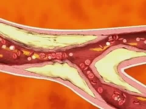 冠状动脉粥样硬化伴血栓形成