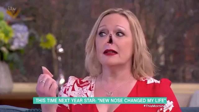 惊人的磁力吸附假鼻子。英国一女士被狗撞后发现患有韦格纳肉芽肿
