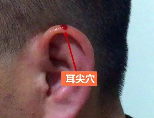 麦粒肿、牙痛、急性扁桃体炎……耳尖放血了解下!