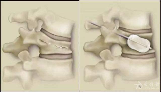 """微创治疗老年椎体压缩性骨折:""""骨水泥手术"""""""