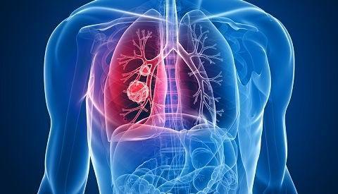 记住3种表现,减少厨房油烟污染,读懂早期肺癌的蛛丝马迹