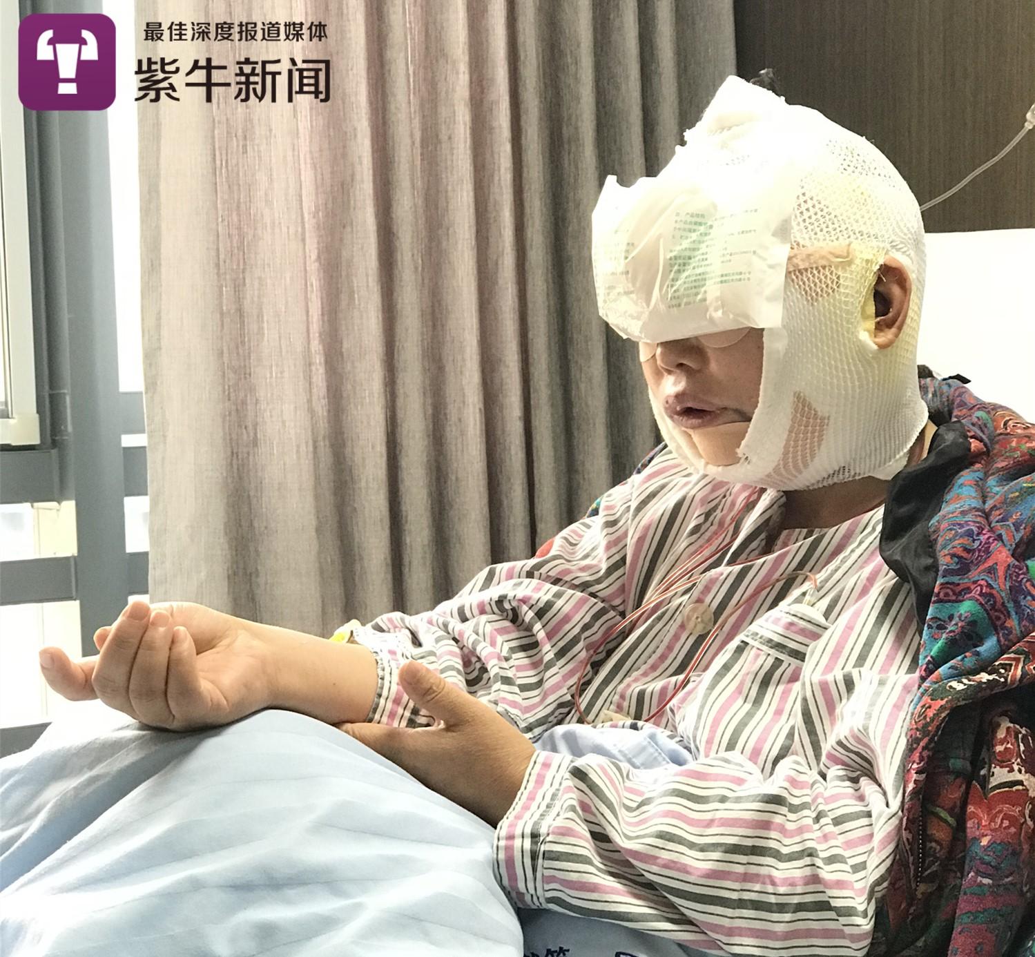 李艳霞全脸整容