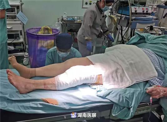 """老太关节炎多年痛难当!""""硬扎""""关节置换,手术台上踢腿?"""