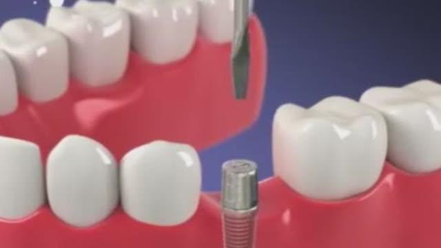 常见的各种牙病都是怎么治疗的?看完感觉好酸爽!