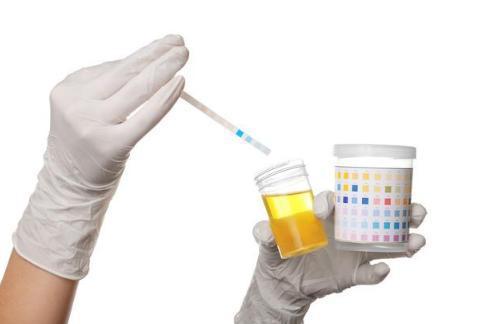 血常规尿常规便常规检查单看不明白?一篇长文让你全搞懂