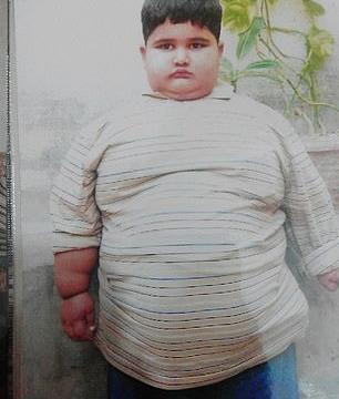 世界上最胖的小孩子,年仅10岁,体重接近400斤!
