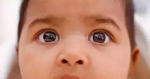 宝宝有特殊面容、喂养困难?0-3岁宝宝智力落后的6个表现,要注意