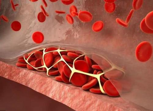 血管好人长寿!想要血管健康,少碰3类食物,多吃这4种果蔬