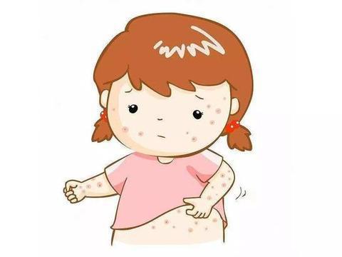 你还在用爽身粉、十滴水对付宝宝的痱子吗?那你就错了