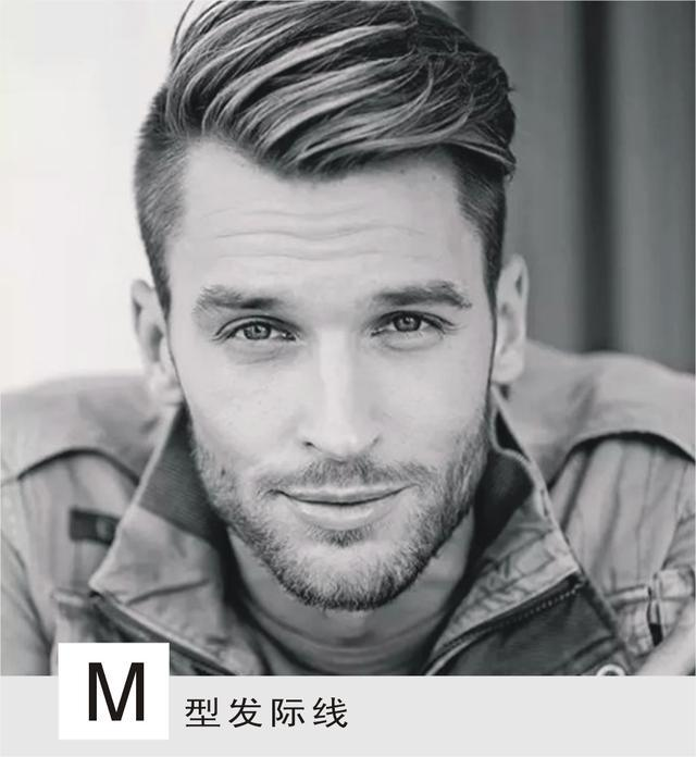 m型发际线的男生,只有这几款发型才能拯救,其他方法的图片