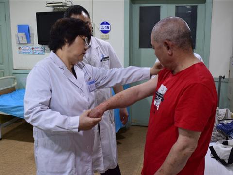 夏季皮肤病高发,北京大学第一医院季素珍教授来唐会诊