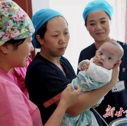 370克!甘肃省妇幼保健院成功救治全国最小体重超早产儿