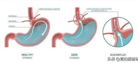 陕西66岁张老太太胸闷咳嗽了10年,一个检查做完发现竟不是哮喘