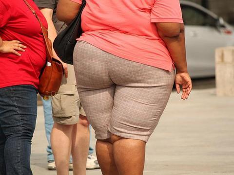 肥胖患者的胃食管反流,医生说这几种治疗方案很有效