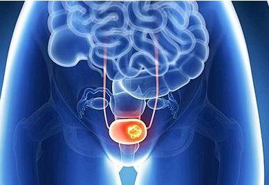 膀胱内化疗+系统免疫治疗!TAR-200/Opdivo治疗肌肉浸润性膀胱癌Ib期研究完成受理患者给药