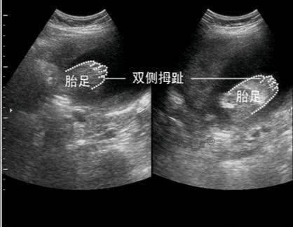 """怀孕后,多久能查出""""胎儿骨骼畸形""""?过了这一周,孕妈妈才放心"""