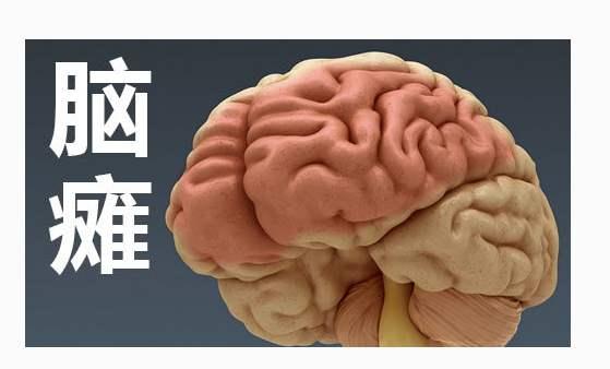 宝妈宝爸必读!凭这些可以诊断新生儿是否为脑瘫!