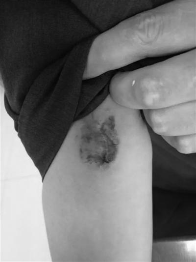 暴力抗法 南京一名艾滋病病毒携带者咬伤法官 [吃惊][吃惊][吃惊]