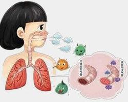 哮喘不可怕,可防可控的小常识需要注意